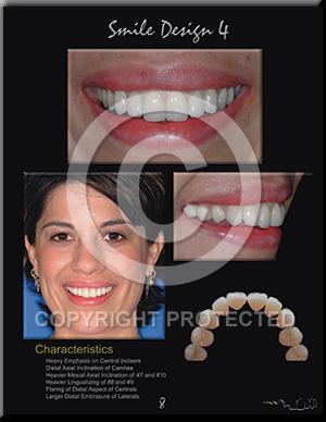 a_Smile-Design-4_L300